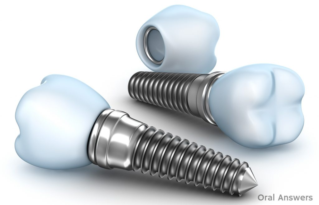 dental_implant_crown_implant_abutment