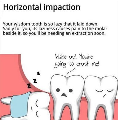 Impacted-Wisdom-Teeth-dental-clinic
