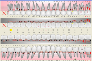 periodontal-charting