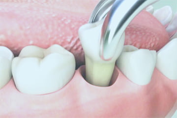 tooth-extractions-novadent-dentist